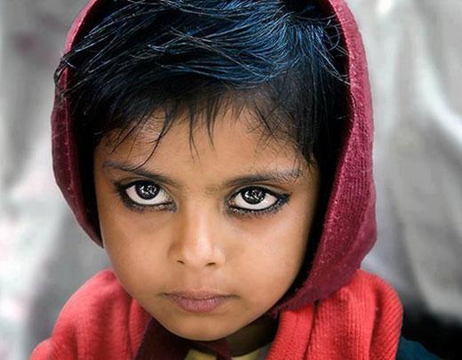 دختر بچه فقیر زیباترین چشم های جهان را دارد (عکس)