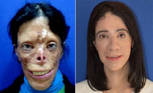 معجزه جراحی پلاستیک روی صورت این خانم (عکس)