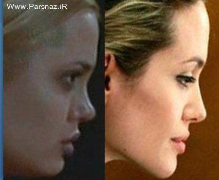 آنجلینا جولی قبل و بعد از جراحی پلاستیک صورت +عکس