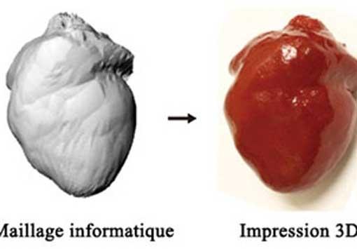 با نوک انگشتان از حملات قلبی پیشگیری کنید (عکس)