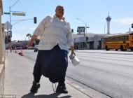 این مرد 49 ساله با بیضه 60 کیلویی عاقبت جان باخت (عکس)