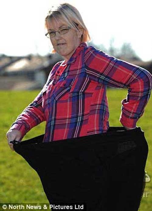 کاهش وزن 102 کیلویی این خانم با اراده + عکس