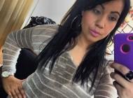 مرگ این خانم 28 ساله بعد از عمل زیبایی (+عکس)