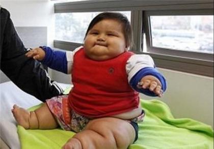 چاقترین بچه دنیا لاغر می کند +عکس