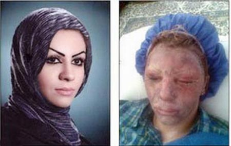 حکم قصاص چشم پدر شوهر معصومه صادر شد! +عکس