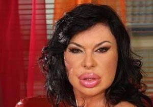زنی که پس از عمل زیبایی تبدیل به هیولا شده است!! +عکس