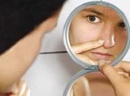 جوش صورت یا آكنه یكی از شایع ترین مشكلات پوستی است