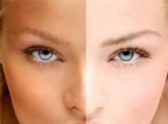 ظاهری زیبا و جذاب با تغذیه سالم (سلامت پوست)