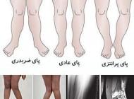 درمان پاهای ضربدری و پرانتزی!