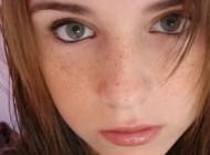 راههای درمان کک مک پوست صورت