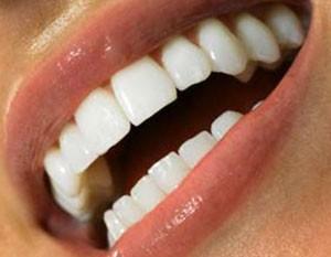 چند توصیه برای حفظ سفیدی دندان ها