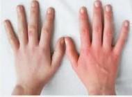 ماجرای تفاوت دست ها با هم