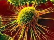 داروی ضد سرطان ساخت ایران