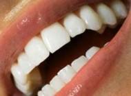 چکار کنیم دندانمان سفید بماند