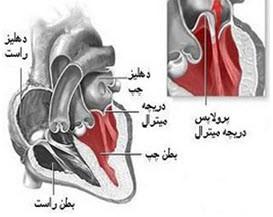 خطرات جانی افتادگی دریچه قلب
