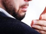 شوره سر یکی از مشکلات رایج در میان افراد بزرگسال