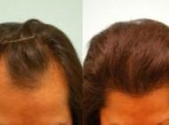 آیا میشود برای خانم ها کاشت مو انجام داد؟