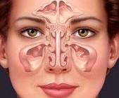 سینوزیت همان سرماخوردگی است؟