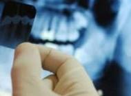 داستان نهفتگی دندان ها