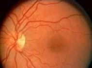 چشم بیونیک تا دو سال آینده