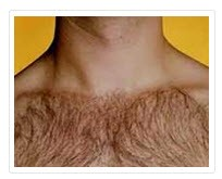 موهای زائد بدن آقایان
