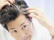 راهکارهایی برای پیشگیری از سفیدی زودرس موها