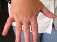 نوعی بیماری التهاب پوستی