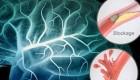 اطلاعات مفید درباره سکته مغزی