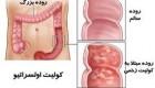 کولیت اولسراتیو  یک بیماری التهابی روده است