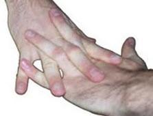 وقتی شما انگشتان خود را می شکنید چه چیزی باعث ایجاد صدا می شود؟