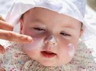 مراقبت از پوست بینی نوزاد در سرما