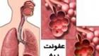 بیماری های مرتبط با عفونت ریه را بشناسید