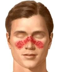 نشانه های شایع بیماری لوپوس