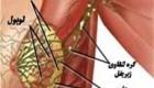 مرحله به مرحله پیشروی سرطان سینه