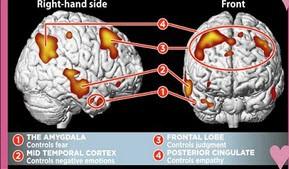 تفاوت جالب مغز انسان های عاشق