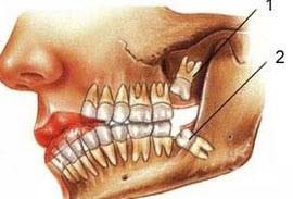 شناخت دردسرهای دندان عقل