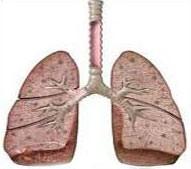 راهکاری برای دارا بودن ریه های تر و تمیز