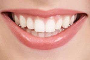 دندانتان را مثل ماه کنید
