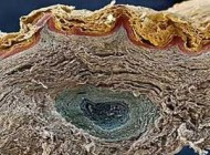 عملکرد سلولهای مرده پوست با اینکه زنده نیست