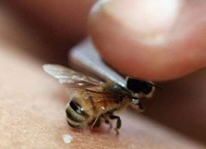 کارهای اولیه در برابر زنبور گزیدگی