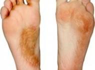 دانستنی های پزشکی بیماری پای ورزشكاران