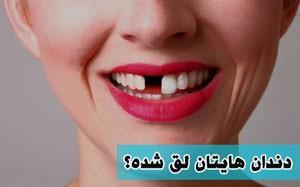 راه درمان دندان لق