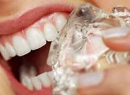 مراقبت از دندان ها و ترک عادت های بد