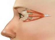 چگونگی قوی کردن عضلات چشم