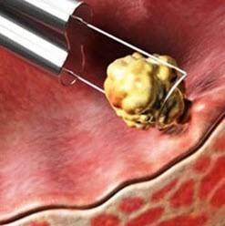 چگونگی درمان تکمیلی سرطان مثانه