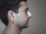 عوارض جراحی بینی در پسران امروزی