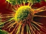 خطاهایی در مورد سرطان سینه