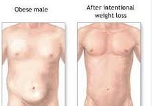 علت چاقی در مردان