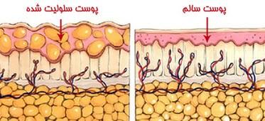 شناسایی سلولیت و درمان آن