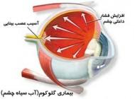 بیماریهای چشمی و درمان آن